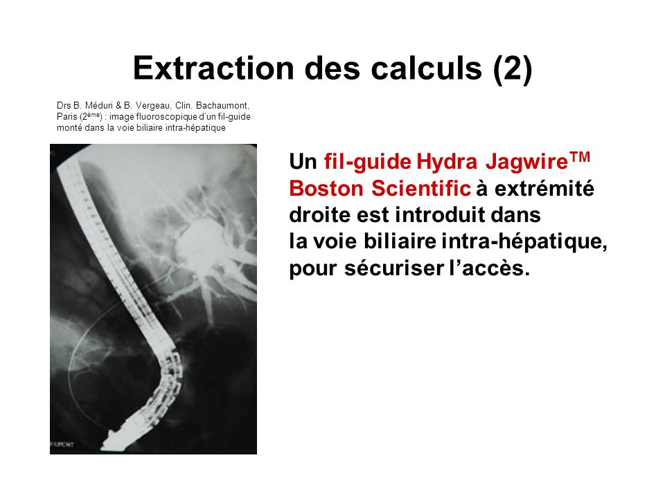 Extraction des calculs (2)