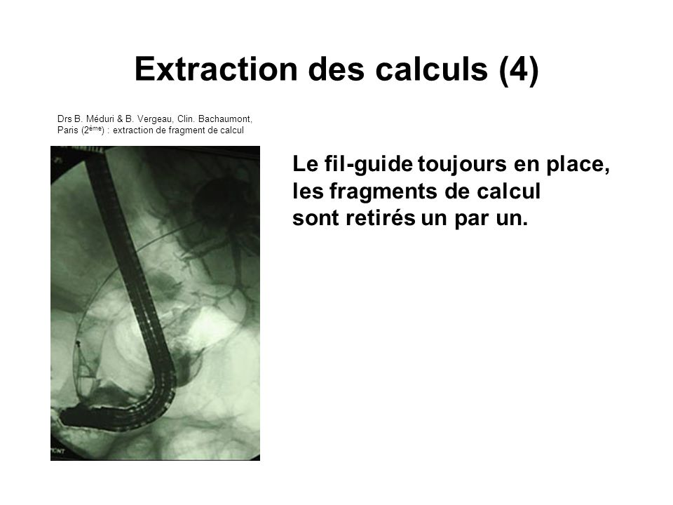 Extraction des calculs (4)
