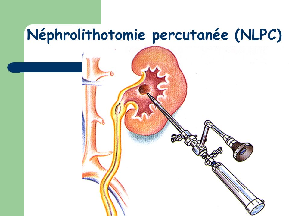 Néphrolithotomie percutanée (NLPC)