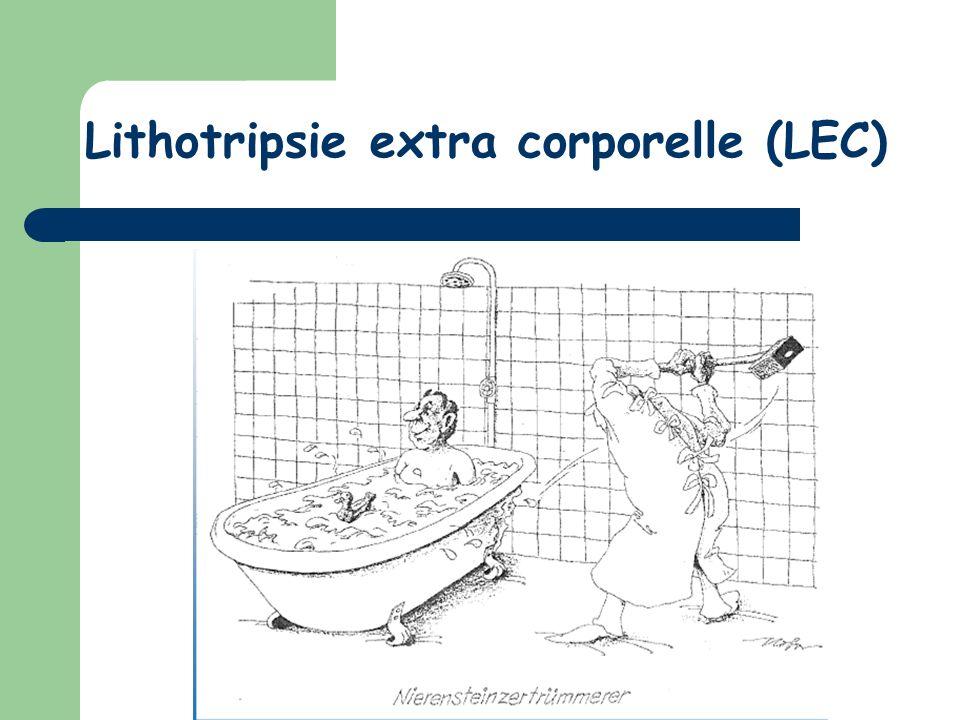 Lithotripsie extra corporelle (LEC)