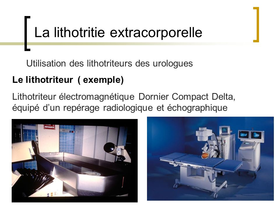 La lithotritie extracorporelle