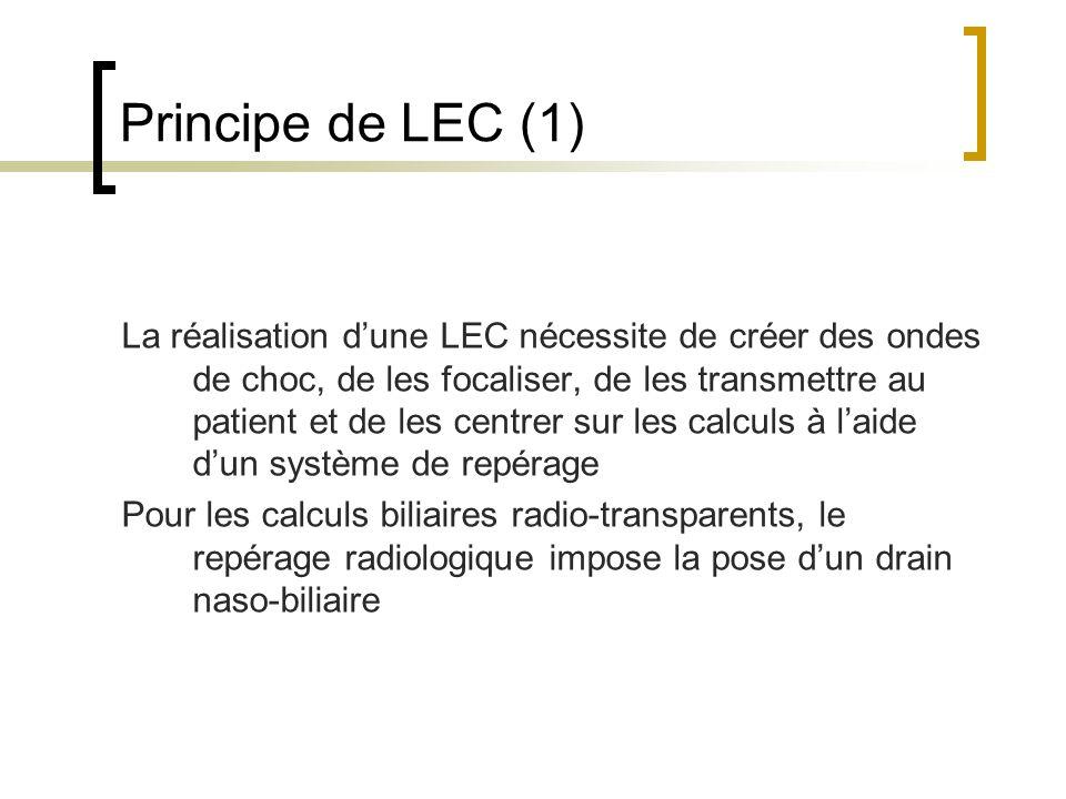 Principe de LEC (1)