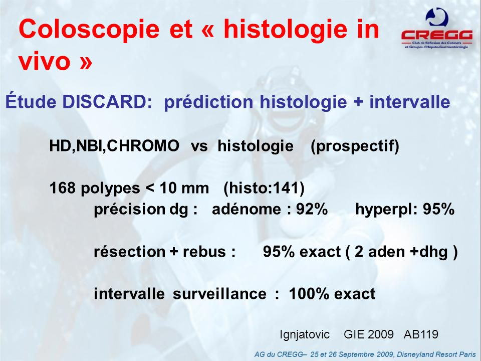 Coloscopie et « histologie in vivo »