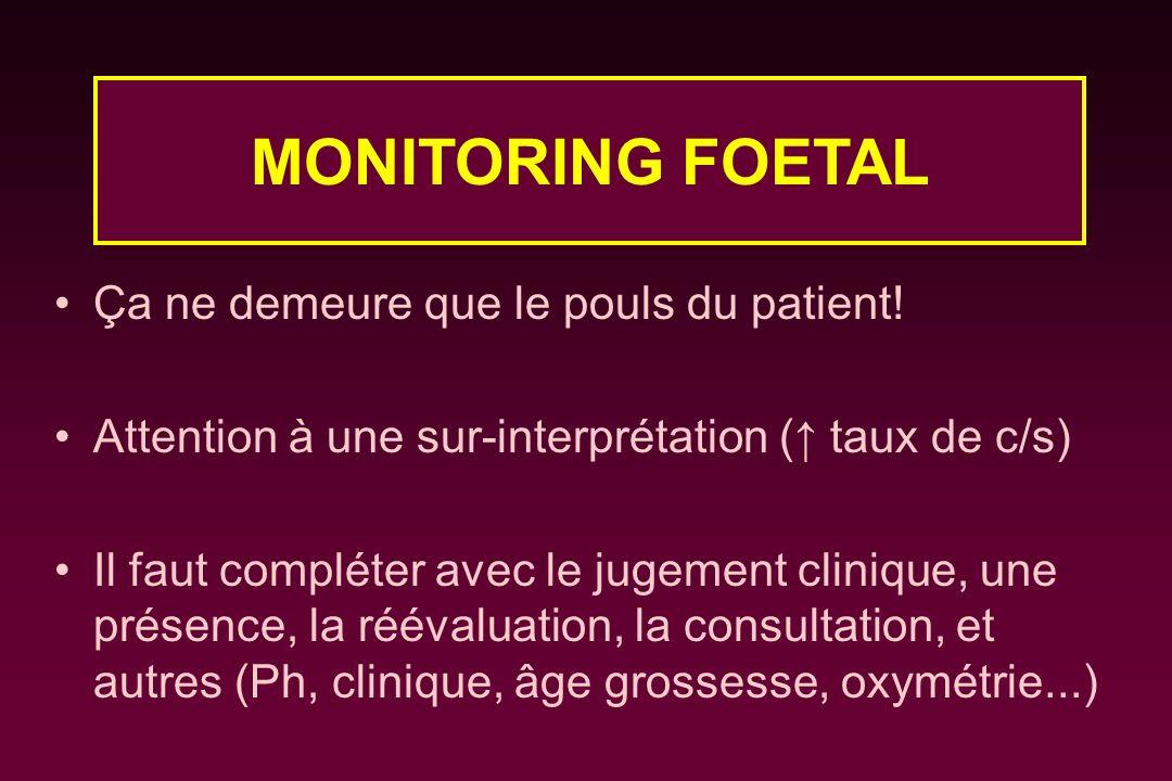 MONITORING FOETAL Ça ne demeure que le pouls du patient!