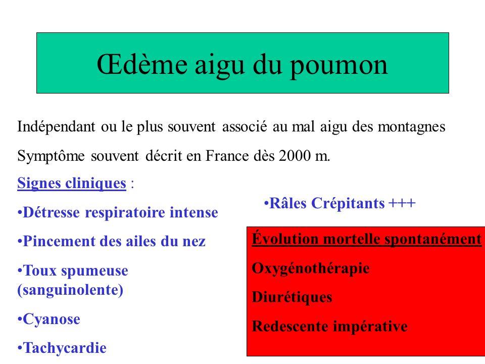 Œdème aigu du poumon Indépendant ou le plus souvent associé au mal aigu des montagnes. Symptôme souvent décrit en France dès 2000 m.