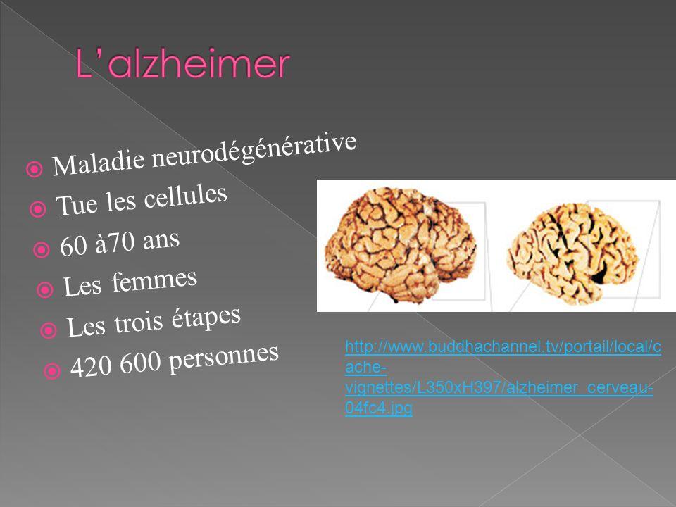 L'alzheimer Maladie neurodégénérative Tue les cellules 60 à70 ans