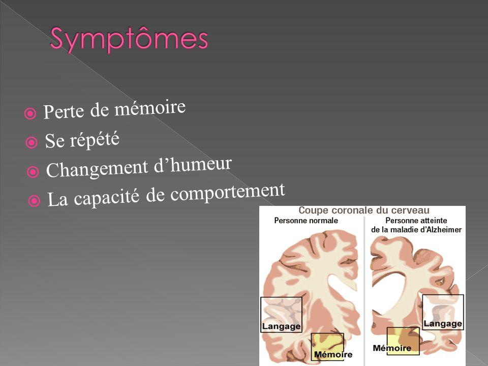 Symptômes Perte de mémoire Se répété Changement d'humeur