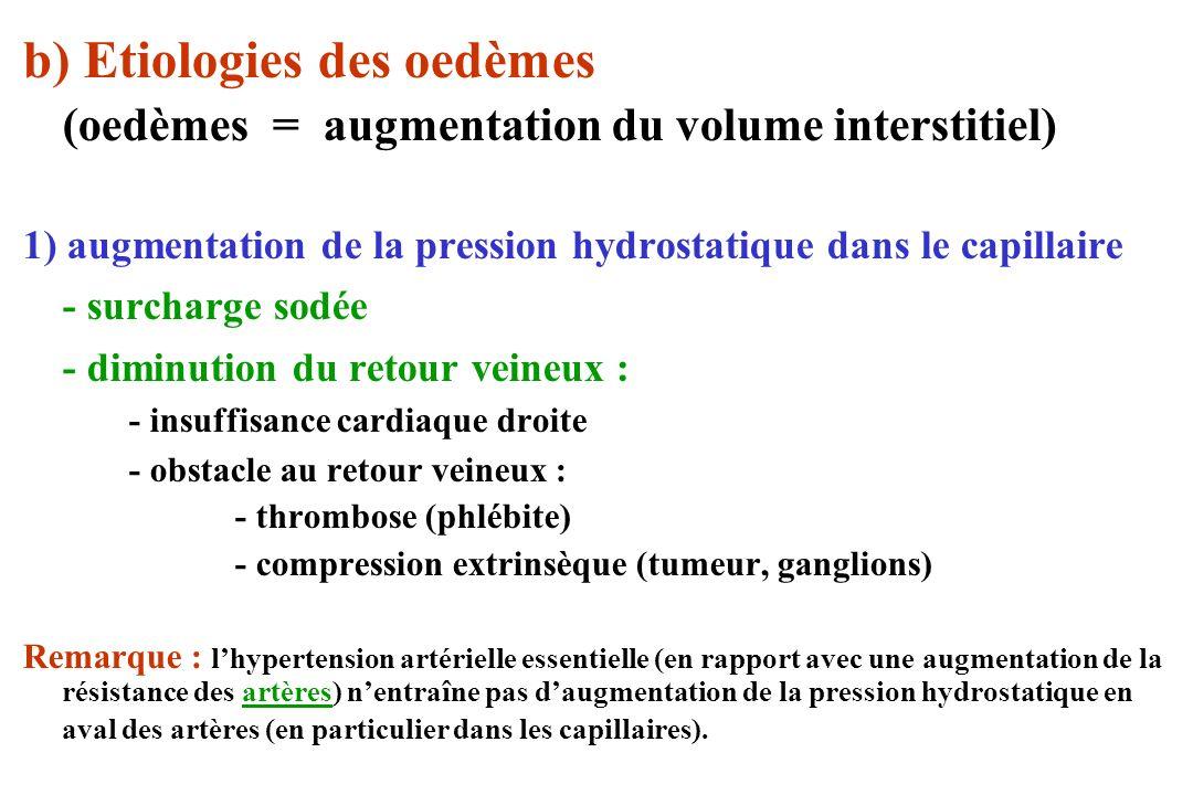 b) Etiologies des oedèmes