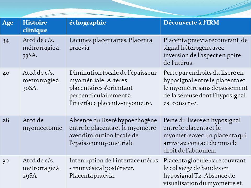 Age Histoire clinique. échographie. Découverte à l'IRM. 34. Atcd de c/s. métrorragie à 33SA. Lacunes placentaires. Placenta praevia.