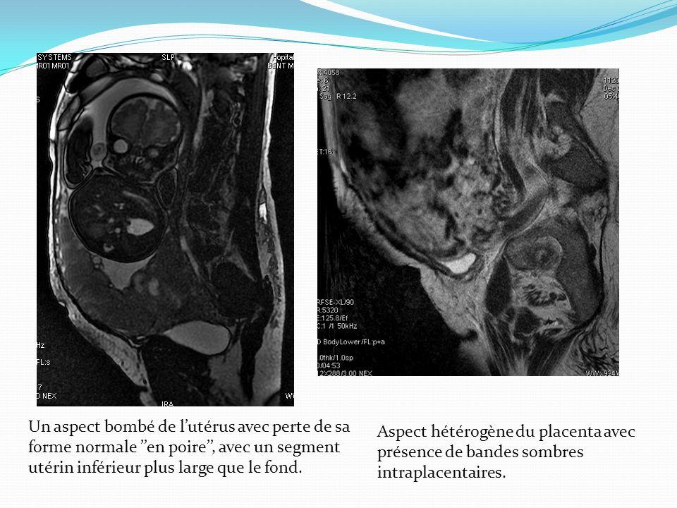 Un aspect bombé de l'utérus avec perte de sa forme normale ''en poire'', avec un segment utérin inférieur plus large que le fond.