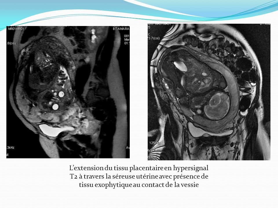 L'extension du tissu placentaire en hypersignal T2 à travers la séreuse utérine avec présence de tissu exophytique au contact de la vessie