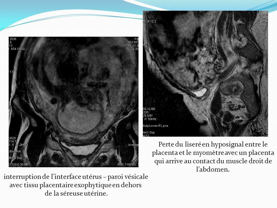 interruption de l'interface utérus – paroi vésicale