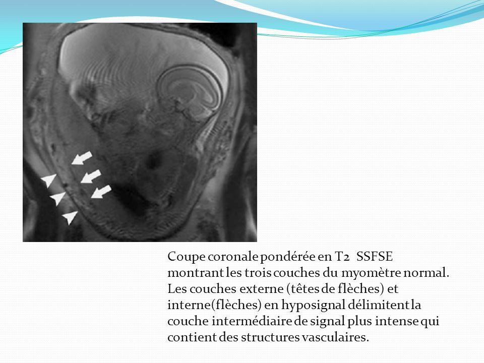 Coupe coronale pondérée en T2 SSFSE montrant les trois couches du myomètre normal.
