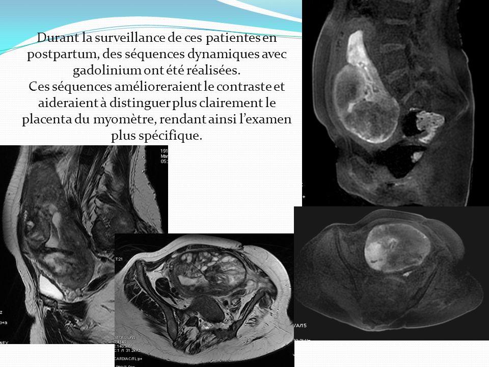 Durant la surveillance de ces patientes en postpartum, des séquences dynamiques avec gadolinium ont été réalisées.