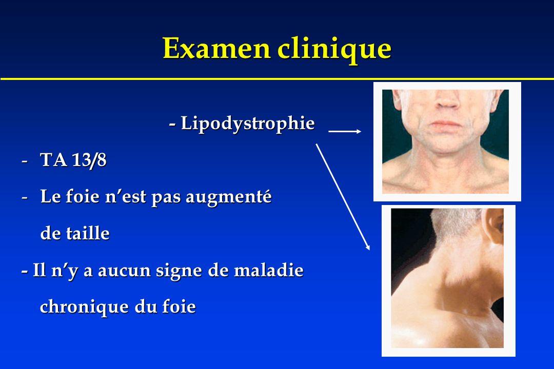 Examen clinique - Lipodystrophie TA 13/8 Le foie n'est pas augmenté