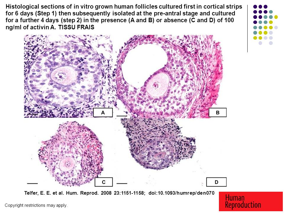 Histological sections of in vitro grown human follicles cultured first in cortical strips for 6 days (Step 1) then subsequently isolated at the pre-antral stage and cultured for a further 4 days (step 2) in the presence (A and B) or absence (C and D) of 100 ng/ml of activin A. TISSU FRAIS