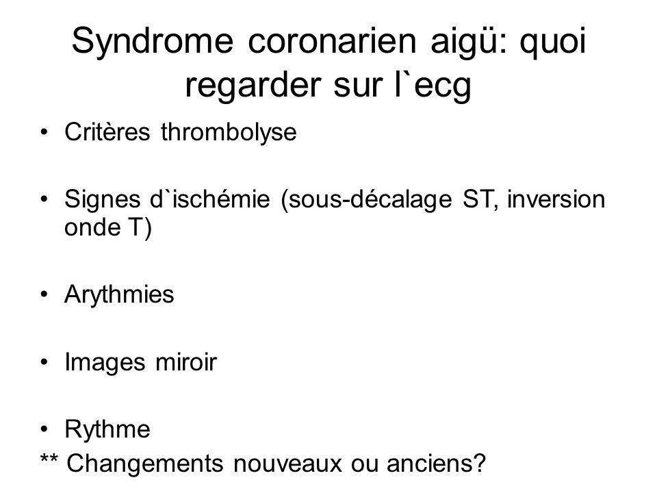 Syndrome coronarien aigü: quoi regarder sur l`ecg