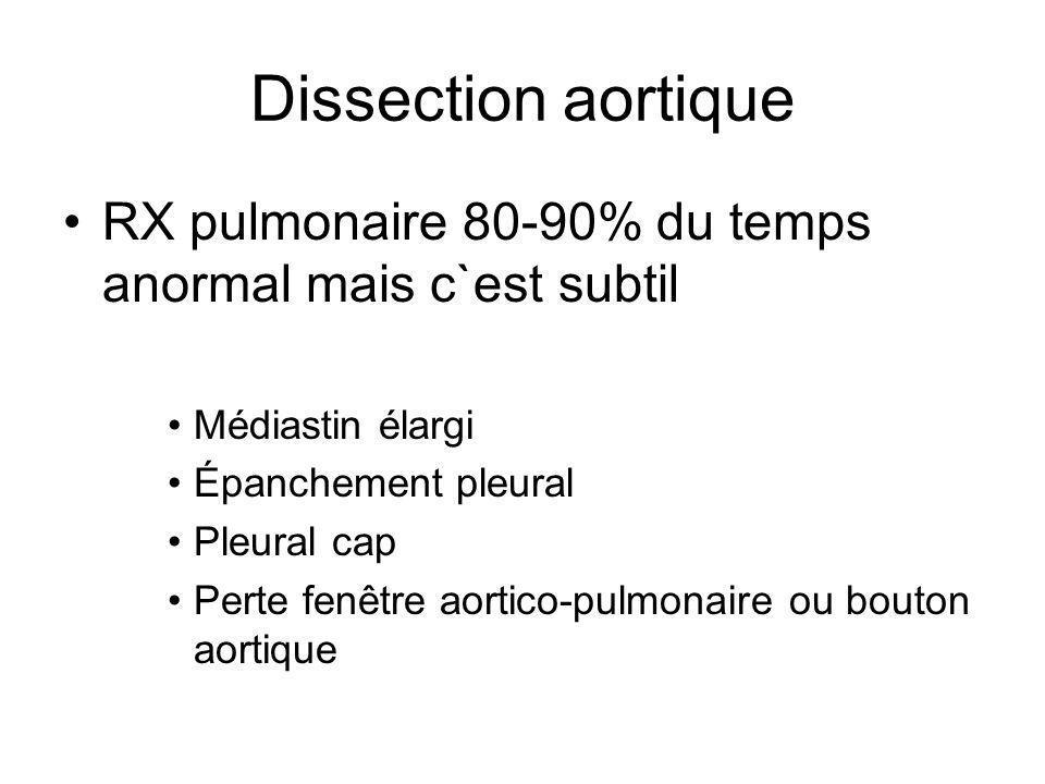 Dissection aortique RX pulmonaire 80-90% du temps anormal mais c`est subtil. Médiastin élargi. Épanchement pleural.