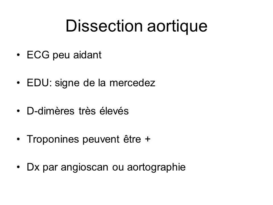Dissection aortique ECG peu aidant EDU: signe de la mercedez