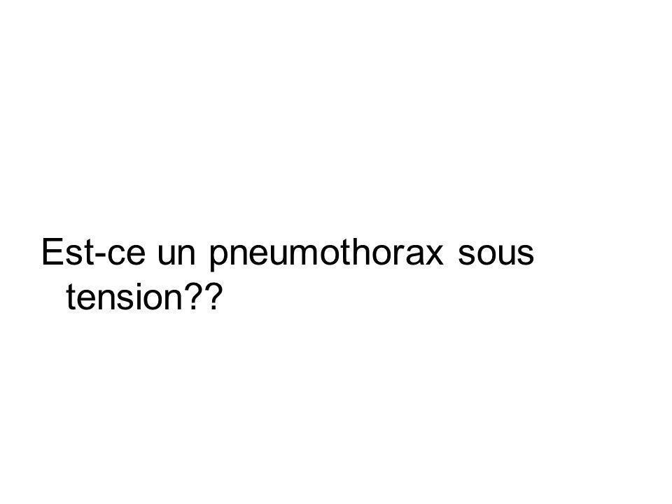 Est-ce un pneumothorax sous tension