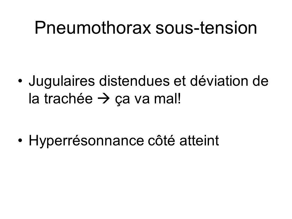 Pneumothorax sous-tension