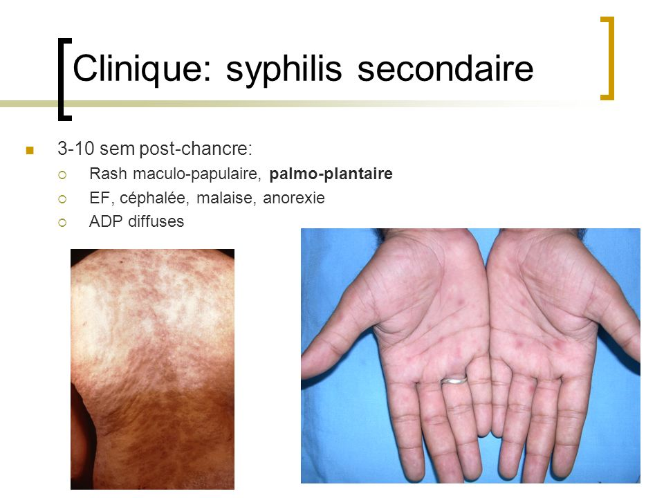 Clinique: syphilis secondaire