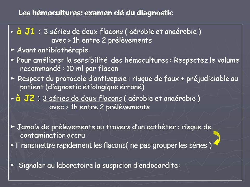 Les hémocultures: examen clé du diagnostic