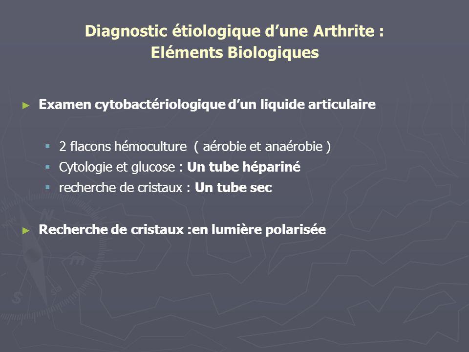 Diagnostic étiologique d'une Arthrite : Eléments Biologiques