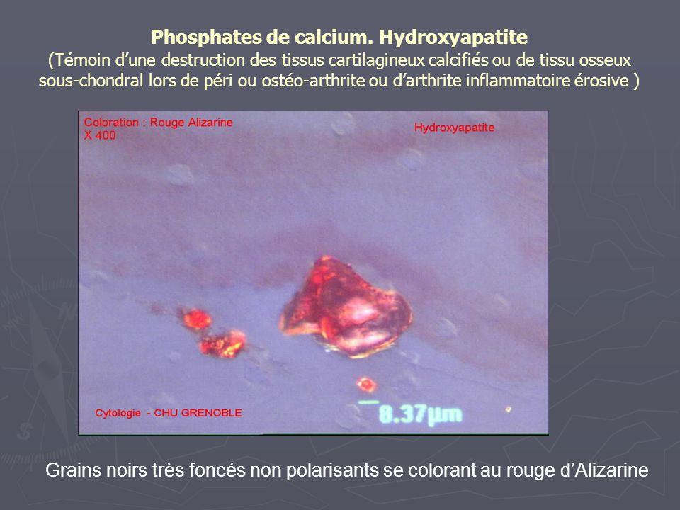 Phosphates de calcium. Hydroxyapatite (Témoin d'une destruction des tissus cartilagineux calcifiés ou de tissu osseux sous-chondral lors de péri ou ostéo-arthrite ou d'arthrite inflammatoire érosive )