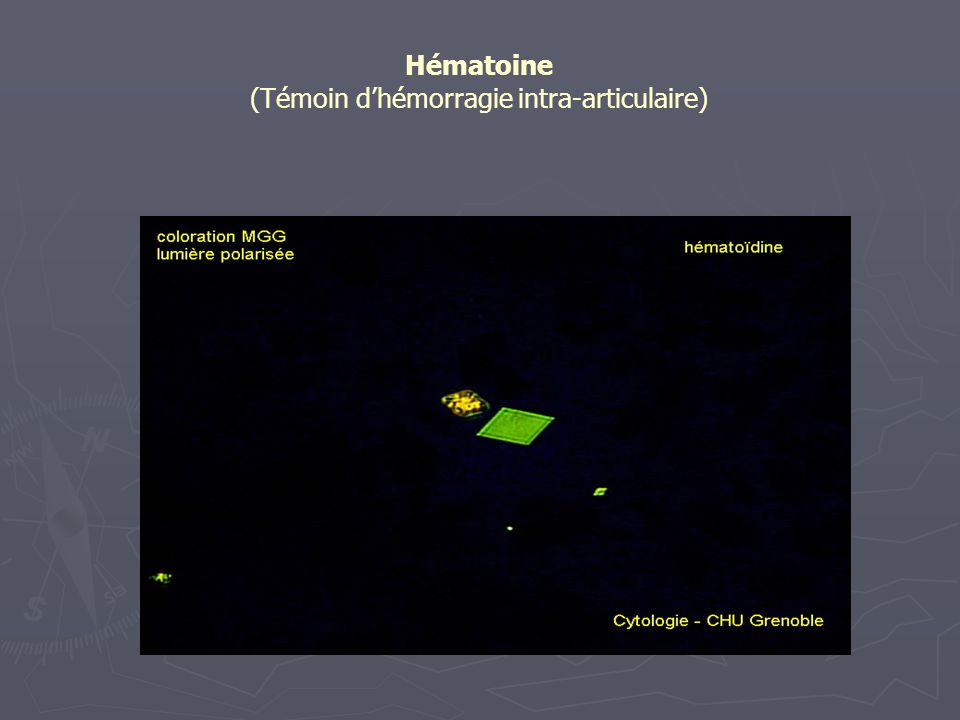 Hématoine (Témoin d'hémorragie intra-articulaire)