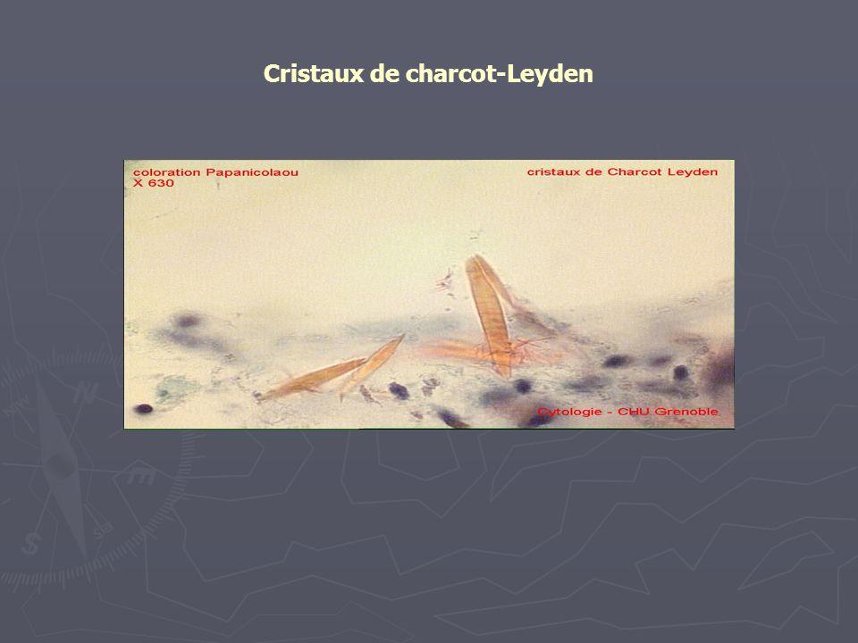 Cristaux de charcot-Leyden