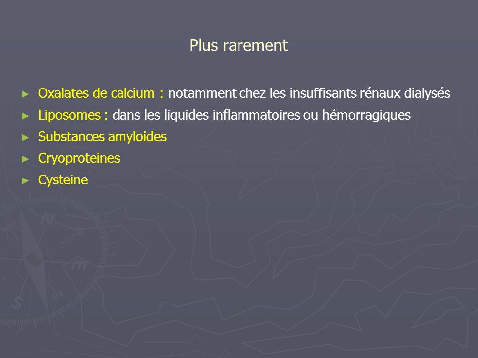 Plus rarement Oxalates de calcium : notamment chez les insuffisants rénaux dialysés. Liposomes : dans les liquides inflammatoires ou hémorragiques.