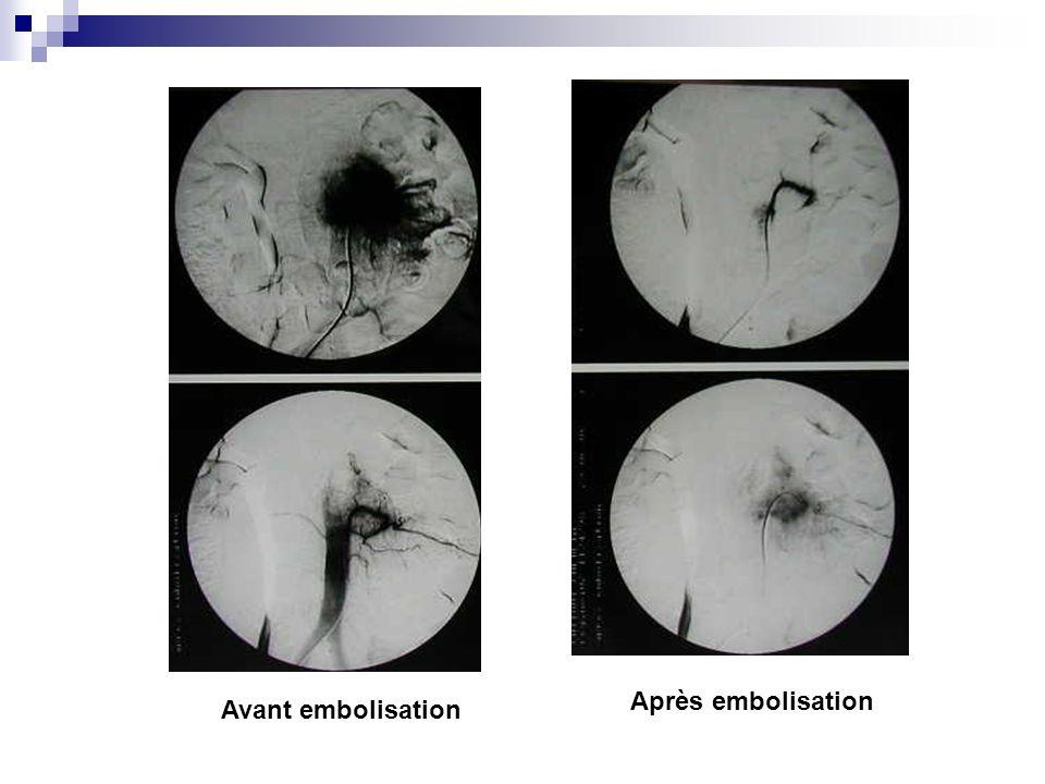 Après embolisation Avant embolisation