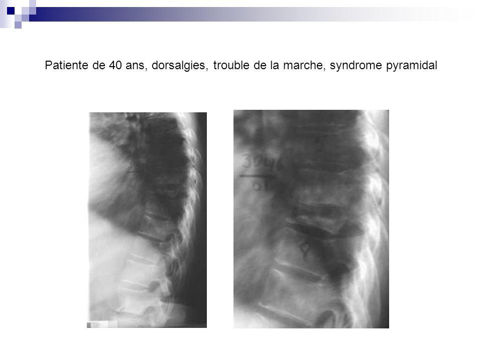 Patiente de 40 ans, dorsalgies, trouble de la marche, syndrome pyramidal