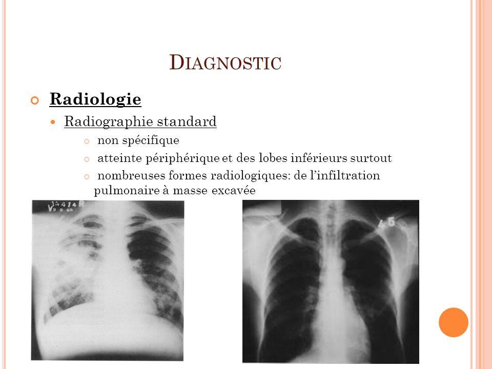 Diagnostic Radiologie Radiographie standard non spécifique