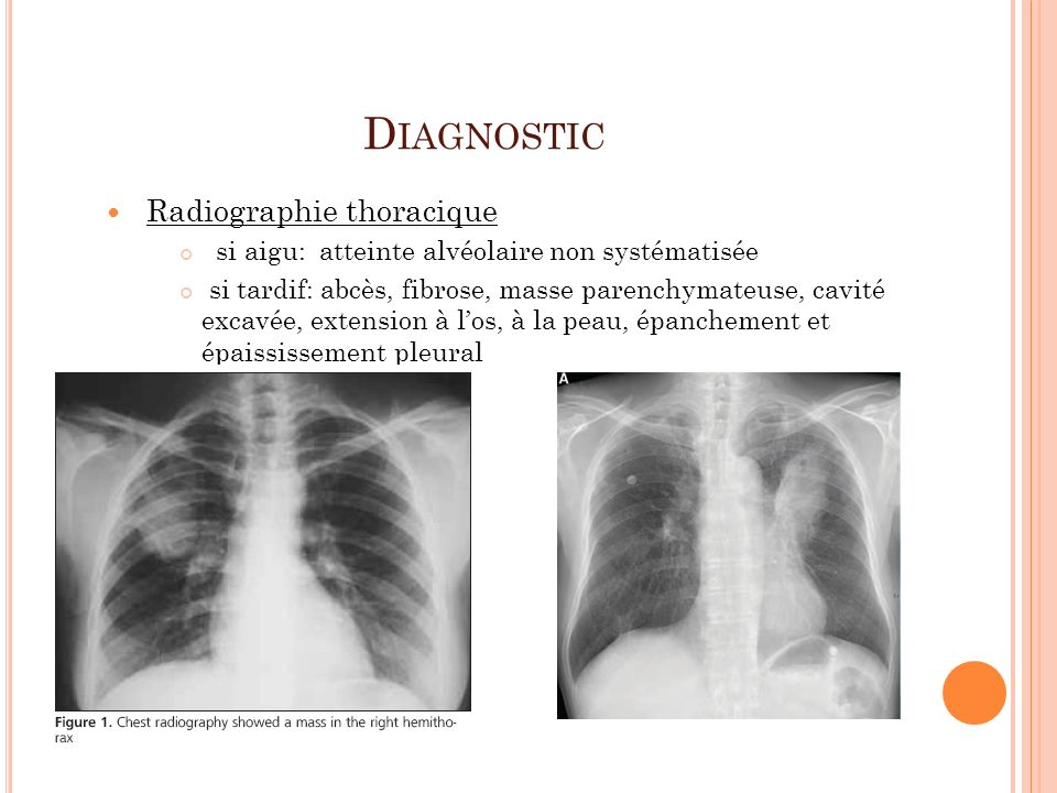 Diagnostic Radiographie thoracique