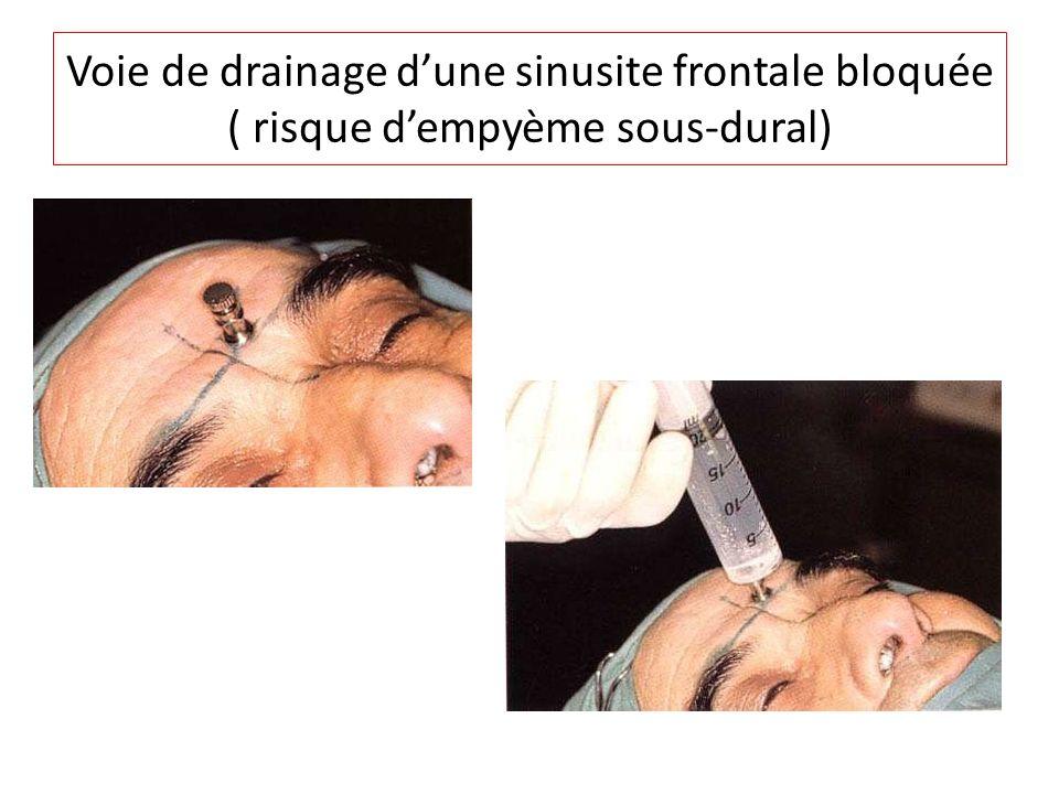 Voie de drainage d'une sinusite frontale bloquée ( risque d'empyème sous-dural)