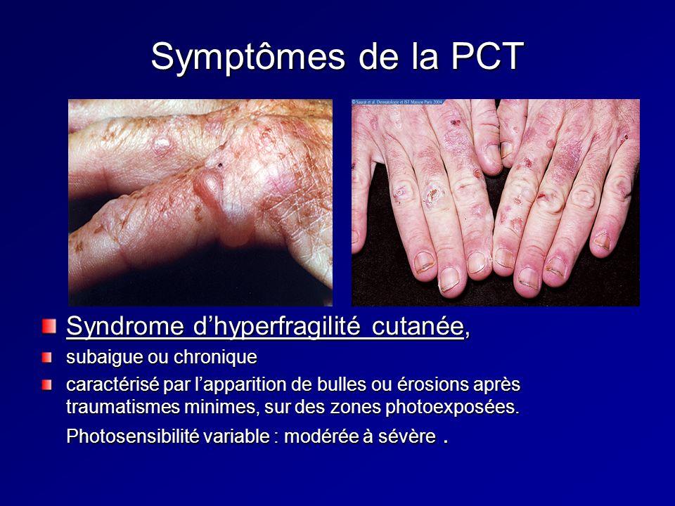 Symptômes de la PCT Syndrome d'hyperfragilité cutanée,