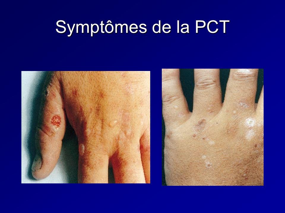 Symptômes de la PCT