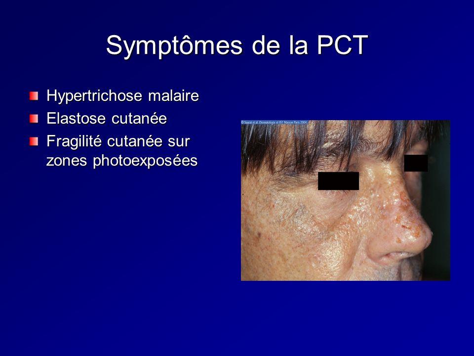 Symptômes de la PCT Hypertrichose malaire Elastose cutanée