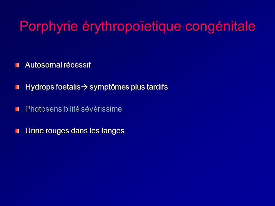 Porphyrie érythropoïetique congénitale