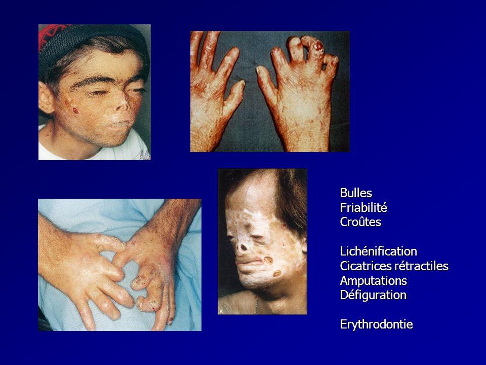 Bulles Friabilité. Croûtes. Lichénification. Cicatrices rétractiles. Amputations. Défiguration.