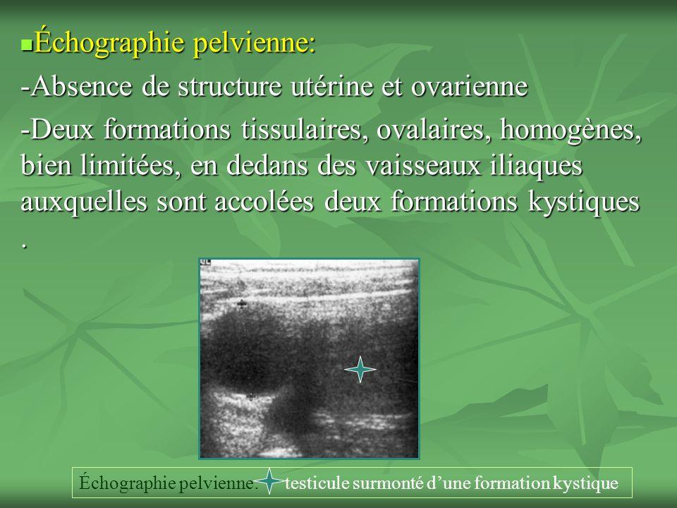 Échographie pelvienne: -Absence de structure utérine et ovarienne