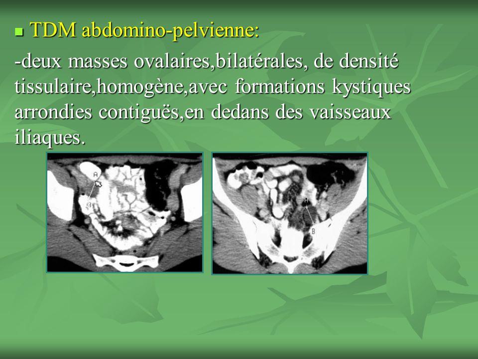 TDM abdomino-pelvienne: