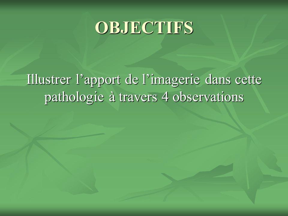 OBJECTIFS Illustrer l'apport de l'imagerie dans cette pathologie à travers 4 observations