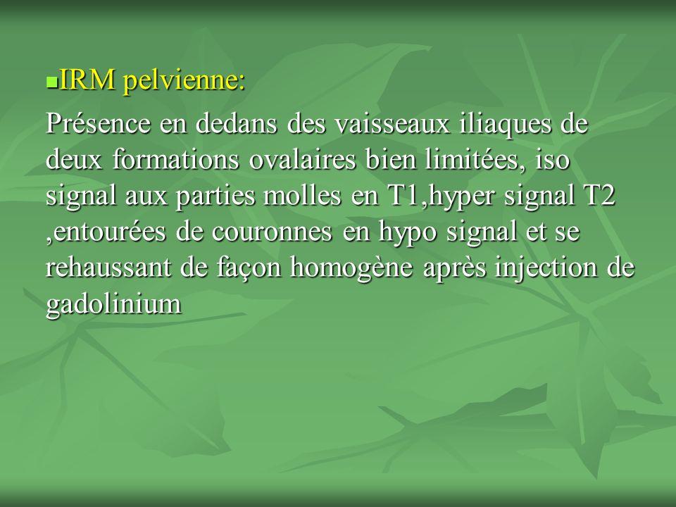 IRM pelvienne:
