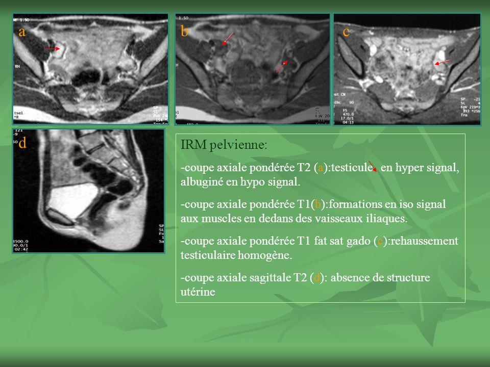 a b. c. d. IRM pelvienne: -coupe axiale pondérée T2 (a):testicule en hyper signal, albuginé en hypo signal.