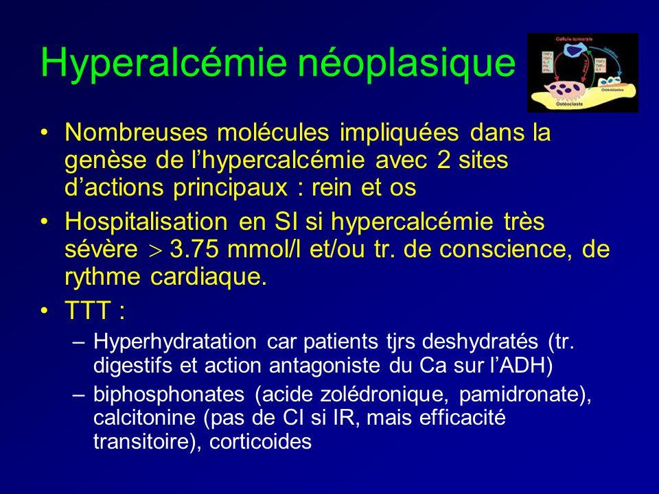 Hyperalcémie néoplasique