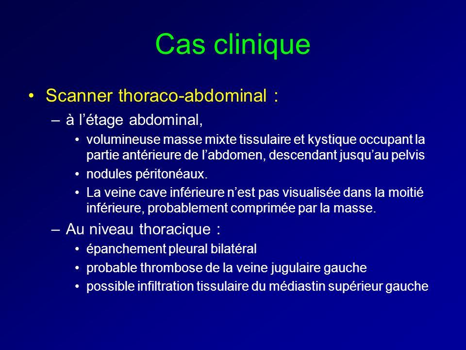 Cas clinique Scanner thoraco-abdominal : à l'étage abdominal,