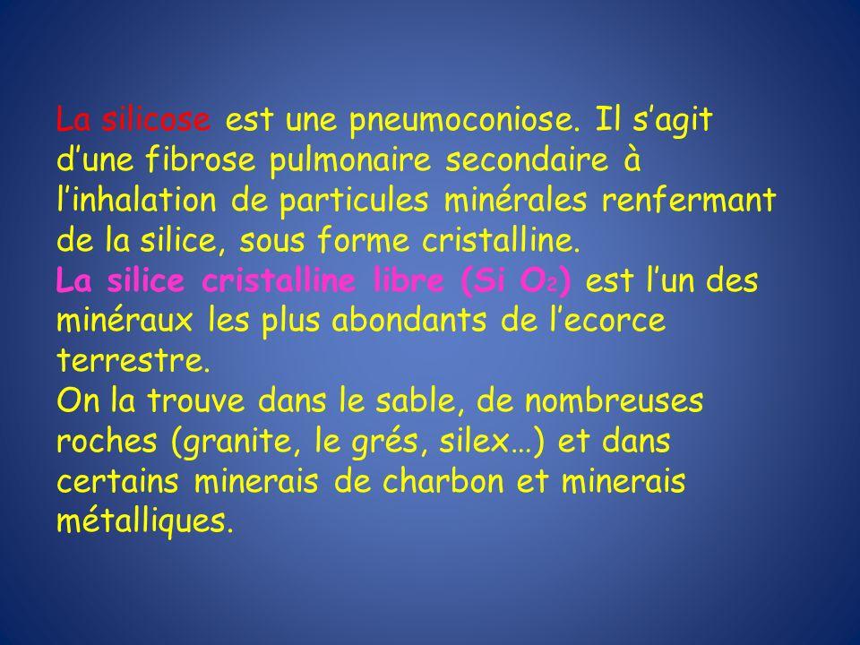 La silicose est une pneumoconiose